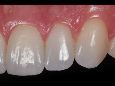 Intraoral right view.
