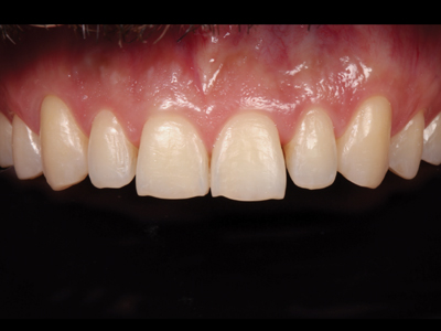 Intramural view of anterior teeth after orthodontics.
