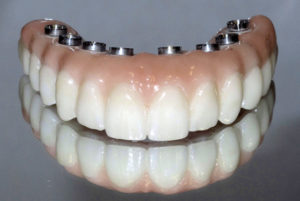 Final Fixed Prosthetic Options for Full Arch Implant Cases