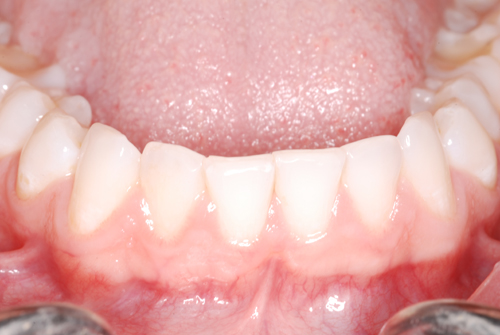 I am this client. These photos taken in January 2014 to further evaluate what I was told was Aggressive tooth brushing. As a client newly diagnosed as an aggressive tooth brusher I navigated to images in comparison to my latest diagnosis.