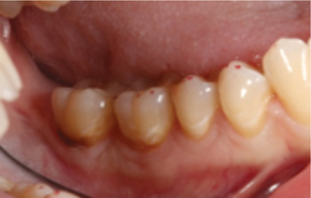Cervical decay around molars was due to non-optimal plaque control and lowered salivary pH.
