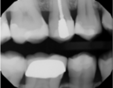 Post treatment radiograph shows preservation of tooth structure and dense adaptation of the restorative materials.