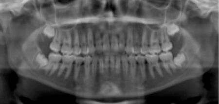 Impaction of third molars with incomplete root development; ideal timing for prophylactic removal.