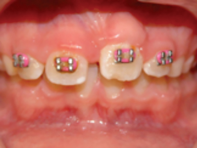 Orthodondtically guided tooth 21 following surgical exposure with apical flap repositioning; note maintenance of healthy keratinized gingival tissue.