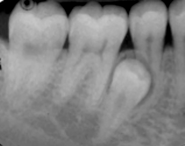 Impacted right mandibular super-numerary premolar, with resorption of the root of tooth 45.