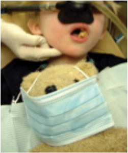 An anesthetic technique is selected to allow for the safe and comfortable provision of the planned surgical procedure with optimal patient compliance.