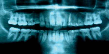 Non-syndromal oligodontia with retained primary teeth.