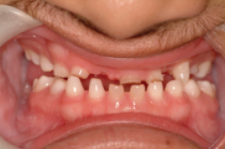 Ectodermal dysplasia; clinical appearance with retained primary teeth, severe oligodontia.
