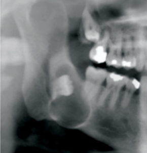 Large dentigerous cyst associated with impacted tooth 48. This lesion was asymptomatic on presentation. Note the posterior displacement of the causative third molar due to the lesion, bringing it in closer proximity to the mandibular canal.
