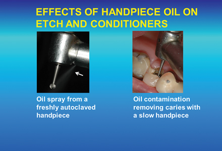 Oil from a high and slow speed handpiece is not removed by polyacrylic acid conditioning the tooth, potentially reducing the bond strength of the GIC.
