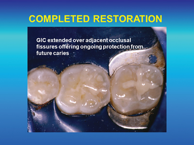 GIC restorations on occlusal surfaces are recommended when there are no unsupported cusps present and the restoration does not encroach upon a centric stop