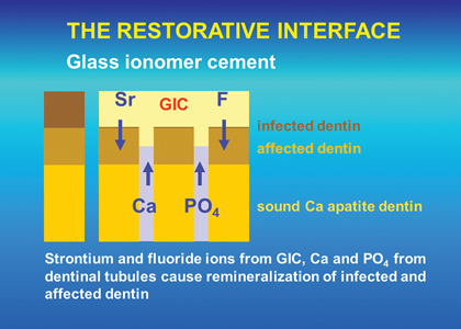 The remineralization process when a GIC restoration is placed over caries affected dentin.