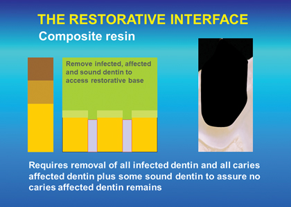 A cavity prepared for a composite resin restoration requiring removal of all infected and affected dentin to achieve a reliable adhesive base.