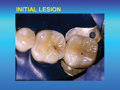 Two small occlusal carious lesions about to be prepared for GIC restorations.