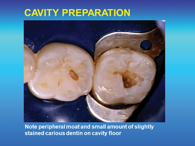 Cavity preparation prior to restoration placement.