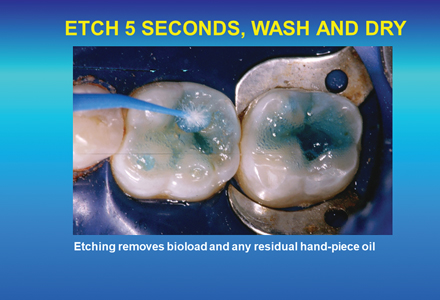 Etching for five seconds with phosphoric acid removes hand piece oil and other contaminants from the cavity surface.