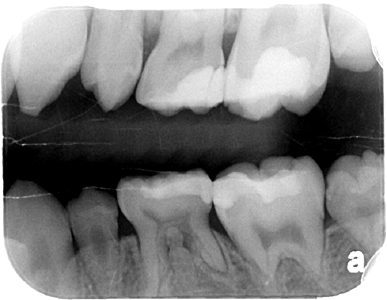 Bitewing radiograph July 9, 2015.
