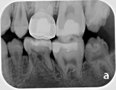 Bitewing radiograph August 2, 2016.