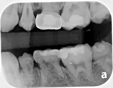 Bitewing radiograph August 22, 2017.
