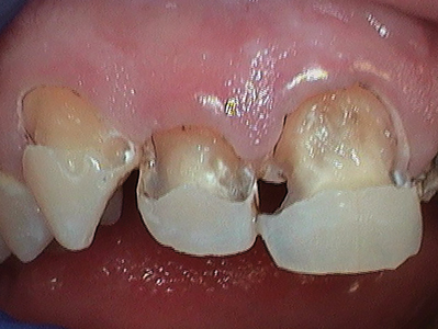 Patient presented with rampant decay. He was placed on SDF protocol prior to restorative treatment. Fourteen restorations were placed followed by six-month SDF recalls. Patient has been compliant with the recommendations. He has stopped contributory poor habits, has been committed to the SDF regimen and has remained caries free for one-year since the restorations were placed.