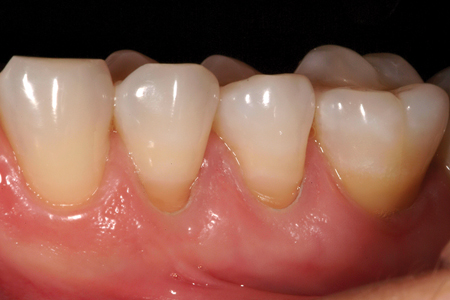 Class V Abfraction – an abfraction that has no decay present can have the tooth surface roughened with a bur, laser or air abrasion but no retention added. A low viscosity resin modified glass ionomer is used to restore the defect.