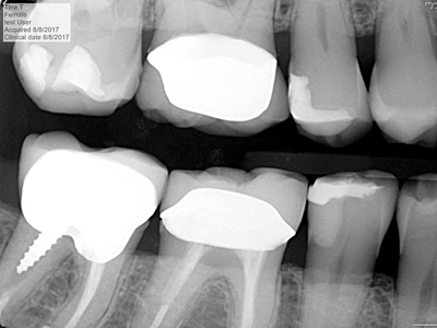 Class II Sandwich – a conventional glass ionomer is placed as a first increment over the dentin followed by a bonding agent and composite. Notice the radiographic display of the glass ionomer sandwiched under the composite.