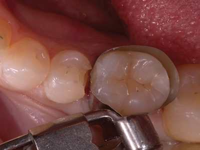 Class V defect adjacent to a Class II preparation – prepare the larger cavity with a Class II preparation design. The Class V preparation is limited to removal of pathology only. No additional reduction, bevels or retention are required. Either a conventional glass ionomer or a resin modified glass ionomer can be used.