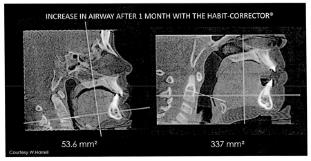 CBCT scan of 9-year-old HealthyStart® patient that mouth breathed.