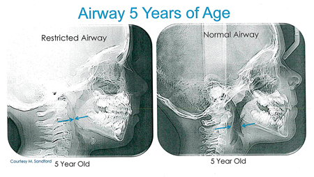 Restricted/Normal airway of 5-year-old.