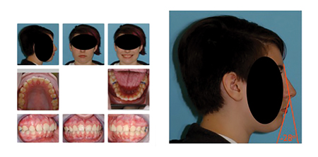 Patient has Class II malocclusion with moderate overjet. Facial Contour Angle of -28° indicates severely recessed mandible.