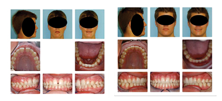 Patient with generalized spacing in upper and lower arches has spacing closed in the anterior without retraction. Spaces have been consolidated between second bicuspid and first molar teeth in all four quadrants. Spaces are large enough to be easily cleaned and are not food traps.