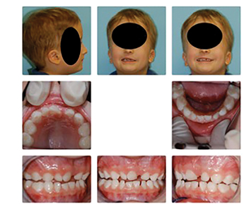 Patient presents with Pediatric OSA, Pierre-Robin Sequence, and Failure to Thrive.