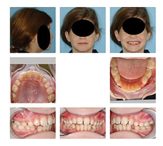 10y 3m old patient after Orthotropic® treatment with ADAPT-LGR™ appliance to develop mandible forward and correct poor rest oral posture.