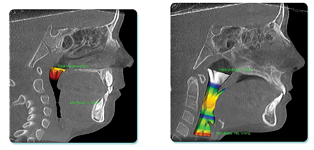 Note dramatic profile and airway improvements for patient in Fig. 18A, B, C. 13.1 mm2 minimal X-section (high risk for OSA) becomes 186.1 mm2 minimal X-section (low risk for OSA) after Orthotropics®.