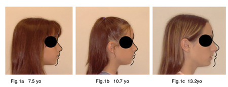 Fig. 1A, 1B, and 1C show the resuIts of poor rest oral posture with the maxilla and mandible both falling back relative to the Bolton norm superimposed on Glabella and Soft Tissue Nasion. Growth patterns like this are, unfortunately, completely normal in all industrialized countries.