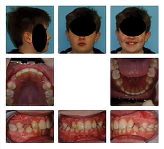 Patient in Fig. 20A, B, C, D had 60.2 mm2 minimal X-section (moderate risk for OSA) which became 150.4 mm2 minimal X-section (low risk for OSA) Post Treatment. Note substantial bone on labial aspect of lower incisors Post-Treatment. Incisor advancement did not cause bone loss or recession as orthodontists are taught.