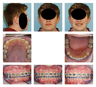 Male patient (14y 10m) in full braces with TAD's placed between lower cuspids and first bicuspid teeth. Alastic chains from TAD's to first molars bring molars forward to close the spaces created by the sagittal appliance.