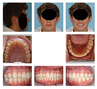 Male patient (17y 8m) more than a year post-treatment. Entire lower dentition has been moved forward to eliminate overjet. Note no gingival recession.