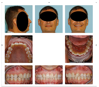"""55y 2m old male treated as child for missing lateral incisors with """"canine substitution""""."""