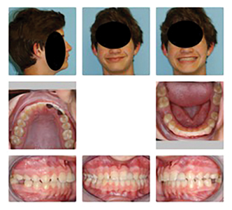 """10y 9m old male with missing upper left lateral incisor, undersized maxillary right lateral incisor, and Class II malocclusion with moderate to large overjet. Patient received orthodontic opinion to have maxillary right lateral incisor removed and both lateral incisor spaces closed by retraction of the central incisors (""""canine substitution"""")."""