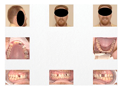38m yo male underwent orthodontics which closed lower anterior spacing in preparation for replacing missing maxillary teeth. He snored and suffered from OSA.