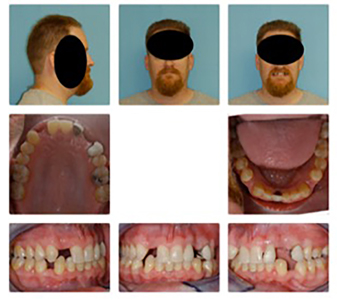 """Revisionary orthodontic treatment reopened lower incisor spacing. Maxillary spaces were better idealized for restorative. Spaces for """"extra"""" bicuspid teeth implants were created between lower cuspids and first bicuspids reducing the Class II overjet. Snoring and apparent OSA eliminated."""