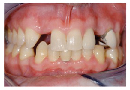 Despite massive advancement of lower anteriors for patient in Fig. 26A, B there is no recession.
