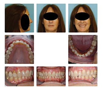 Migraine suffering patient who never had orthodontic treatment.