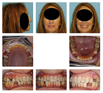 """Patient after orthodontic treatment to open space for """"extra"""" bicuspid teeth between upper bicuspids and between lower cuspids and first bicuspids. Substantial lateral expansion of both arches was also accomplished. Migraine pattern was completely eliminated."""