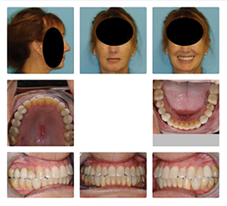 """Patient after restoration of """"extra"""" bicuspid teeth in each quadrant."""