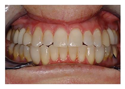 No recession in lower anterior despite massive advancement of anterior teeth.