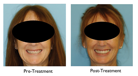 Pre and Post-Treatment smiles.