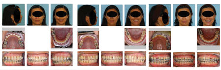 """40 yo female patient had maxillary right and left first bicuspid teeth extracted and her overjet completely eliminated by retraction when she presented for a second opinion. She had developed severe pain in the TMJ's, an inabiity to breathe, and OSA Patient reported, """"I thought I was going to die"""""""
