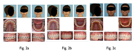 Fig. 2A: Patient with teeth aligned ready for orthognathic surgery. Fig. 2B: Patient post ortho and orthognathic surgery. Fig. 2C: Patient after 5 years with no retainer. The maxilla and mandible have narrowed and the incisors are beginning to crowd due to low rest tongue posture.